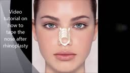 How to tape nose after rhinoplasty