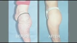 Dr. David J. Salvador - Smartlipo Laser Doctor West Palm Beach FL