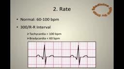 11 Steps to Read an ECG ( EKG )