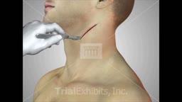 Carotid Endarterectomy Approach