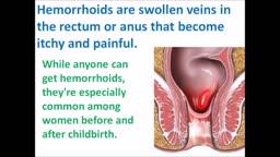 Treat HEMORRHOIDS