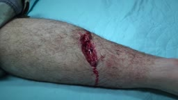 Chainsaw Accident! Lacerations