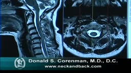 MRI of Cervical Stenosis