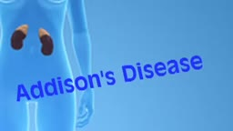 Addison Disease