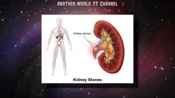 Kidney Stones: Symptoms
