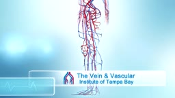 Spider Vein Sclerotherapy Injections