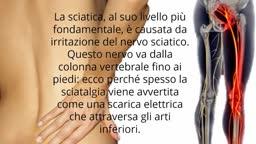Nervo Sciatico, Accavallamento Nervi, Lombosciatalgia Sintomi E Cure, Dolore Coscia, Sciatica