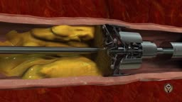 Cholesterol Removal Machine - New Invention