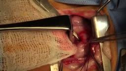 Patent Ductus Arteriosus Ligation