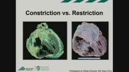 Constrictive pericarditis versus restrictive cardiomyopathy