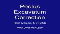 Pectus Excavatum Repair