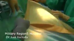 Brain Hematoma Surgery