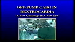Off-Pump CABG in Dextrocardia