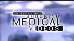 Worlds Most Amazing Medical Case