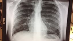 Spontaneous Collapsed Lung