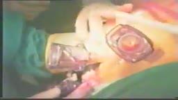 Adrenalectomy