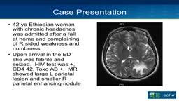 Progressive Multifocal Leukoencephalopathy (PML)