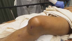 Knee Dislocation Reduction-