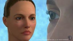 Eyelid Surgery Lower
