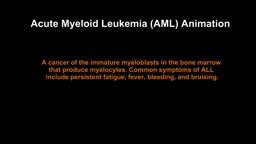 Acute Myeloid Leukemia AML
