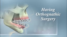 Orthognathic Surgery For A Severe Overbite