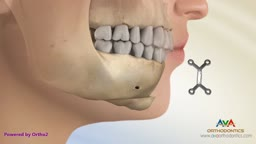 Different Types of Jaw Surgery