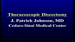 Thoracoscopic Discectomy