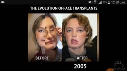 The Face Transplant is getting better