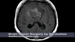 Brain tumor resection with open approach