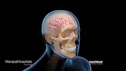 Brain Concussions