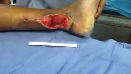 Composite anterolateral thigh flap for achilles tendon repair