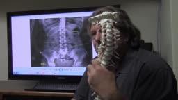 Fix a herniated disc in the lumbar spine