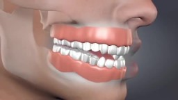 Devastating Consequences of Tooth Loss