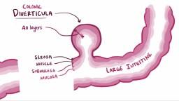 Diverticula, diverticulosis, & diverticulitis