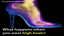 What happens when you wear High Heels.