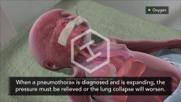 Treatment of Pneumothorax